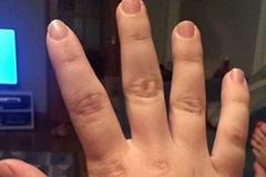 Người phụ nữ có bàn chân, bàn tay phát triển không ngừng