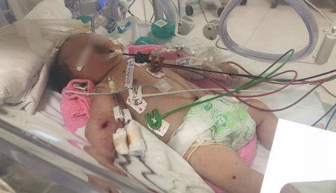 Lọc máu liên tục 2 ngày cứu bé sơ sinh bỏ bú, hôn mê