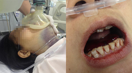 Chỉ tím dưới cổ, một phụ nữ bị máu đông chèn kín họng lên miệng
