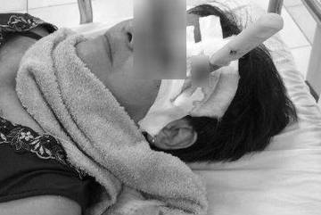 Mang cả dao gọt hoa quả cắm xuyên sọ vào phòng cấp cứu