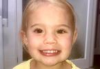 Cô bé 3 tuổi xinh đẹp trở lại nhờ mắt giả được làm từ... mỡ