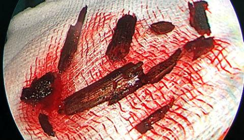 bác sĩ gắp 10 mảnh cây trong hốc mắt người bệnh