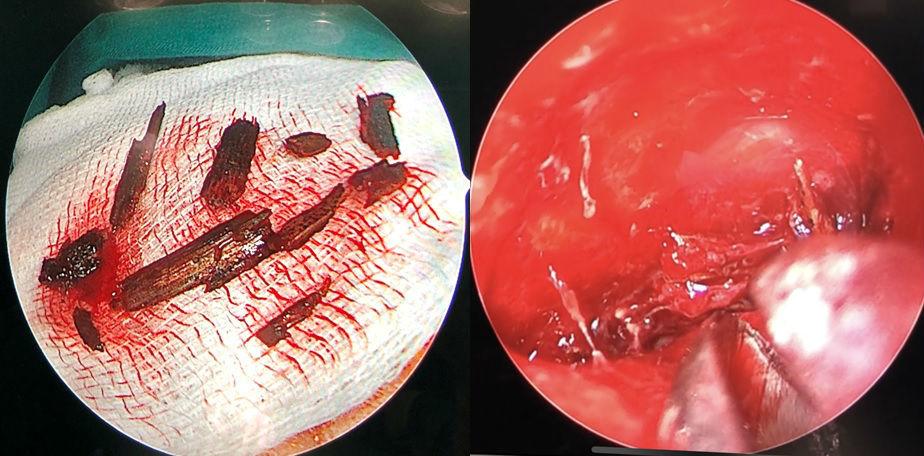Xem video bác sĩ gắp 10 mảnh cây ghim vào hốc mắt người bệnh