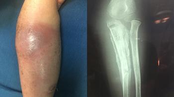 Cánh tay bé gái hoại tử xương phải cắt bỏ do cha mẹ đắp lá