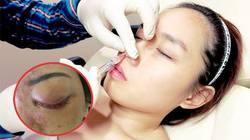 TPHCM: Kinh hãi cô gái mù mắt sau 5 phút tiêm filler ở spa