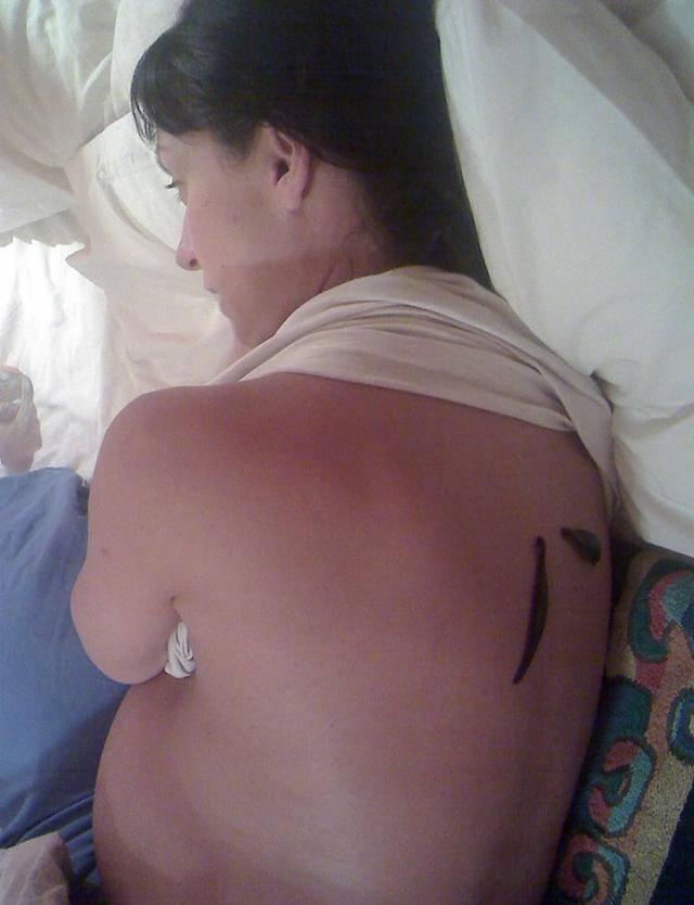 Mắc u xơ, người phụ nữ đặt 500 con đỉa vào cổ tử cung chỉ để làm một việc