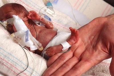 Sinh non nặng vẻn vẹn gần 4 lạng, bé gái sống sót kỳ diệu