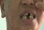Thiếu nữ làm thuê bị chủ bẻ răng, nung sắt nóng...'má nhận không ra'
