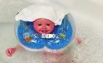 Bé gái vừa chào đời da đã nứt toác và liên tục bong như vảy cá