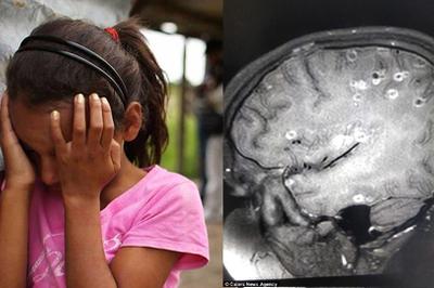 Bé 8 tuổi co giật vì 100 trứng sán làm tổ trong não, nguyên nhân do 2 thói quen nhiều người mắc