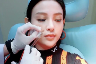 Huyền Baby chia sẻ video tiêm filler để giữ nhan sắc không tuổi