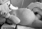 Bé gái 6 tháng bụng phình như trái bóng vì mang bào thai từ trong bụng mẹ