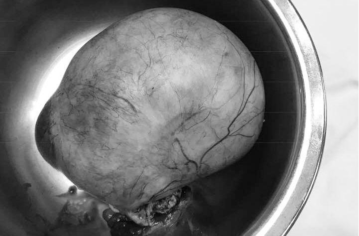 u nang buồng trứng,khối u,u nang