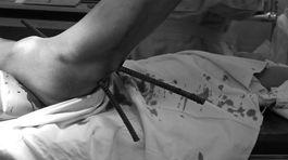 Kinh hãi nam công nhân bị 2 thanh sắt đâm xuyên háng