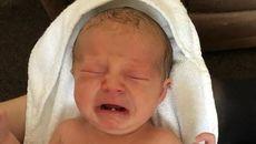 Vì sao bé sơ sinh phải nhổ răng khi mới 12 ngày tuổi?