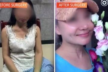 'Chúa Chổm' 60 tuổi phẫu thuật thành thiếu nữ đôi mươi để trốn nợ