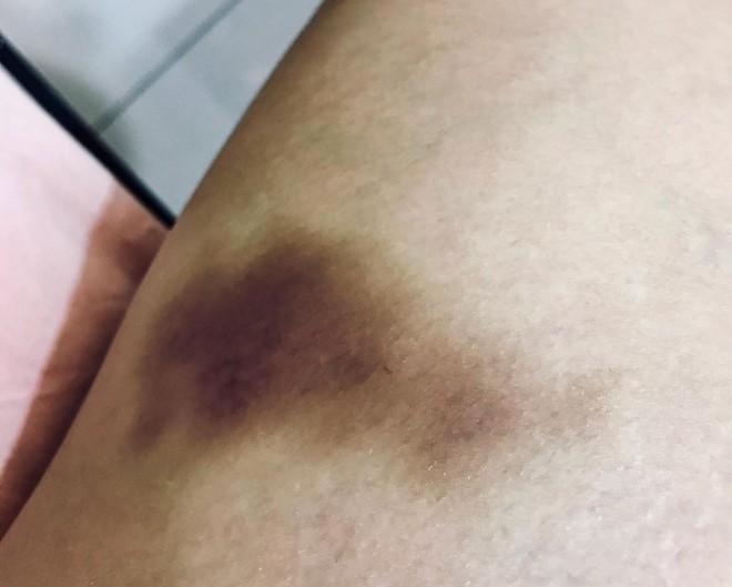 Thiết bị quay lén tinh vi được phát hiện trong phòng chị em thay đồ