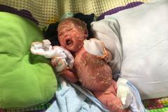 Xót thương bé trai 2 tuổi toàn thân bong tróc, quặn mình đau đớn