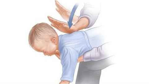 sơ cứu trẻ bị hóc dị vật đường thở