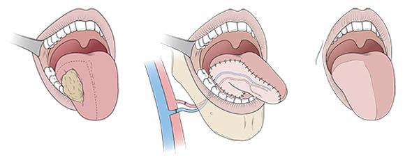 Nhiệt miệng 2 tháng không khỏi, cô gái bị cắt nửa chiếc lưỡi sau khi khám