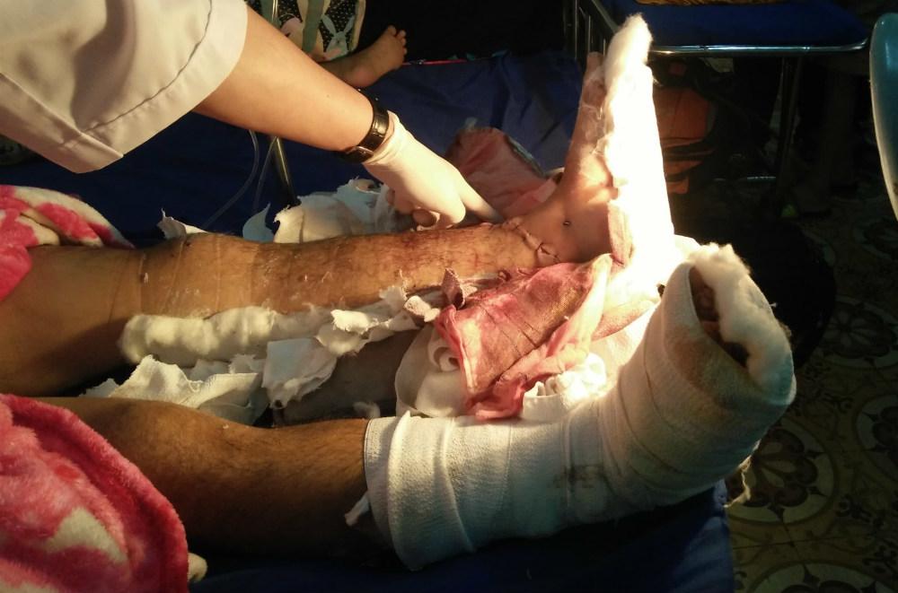 Nam thanh niên bị kẻ lạ chém đứt lìa 2 bàn chân
