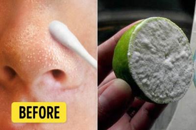 Mẹo đánh bật mụn đầu đen dễ dàng bằng cách chà nửa quả chanh lên mặt
