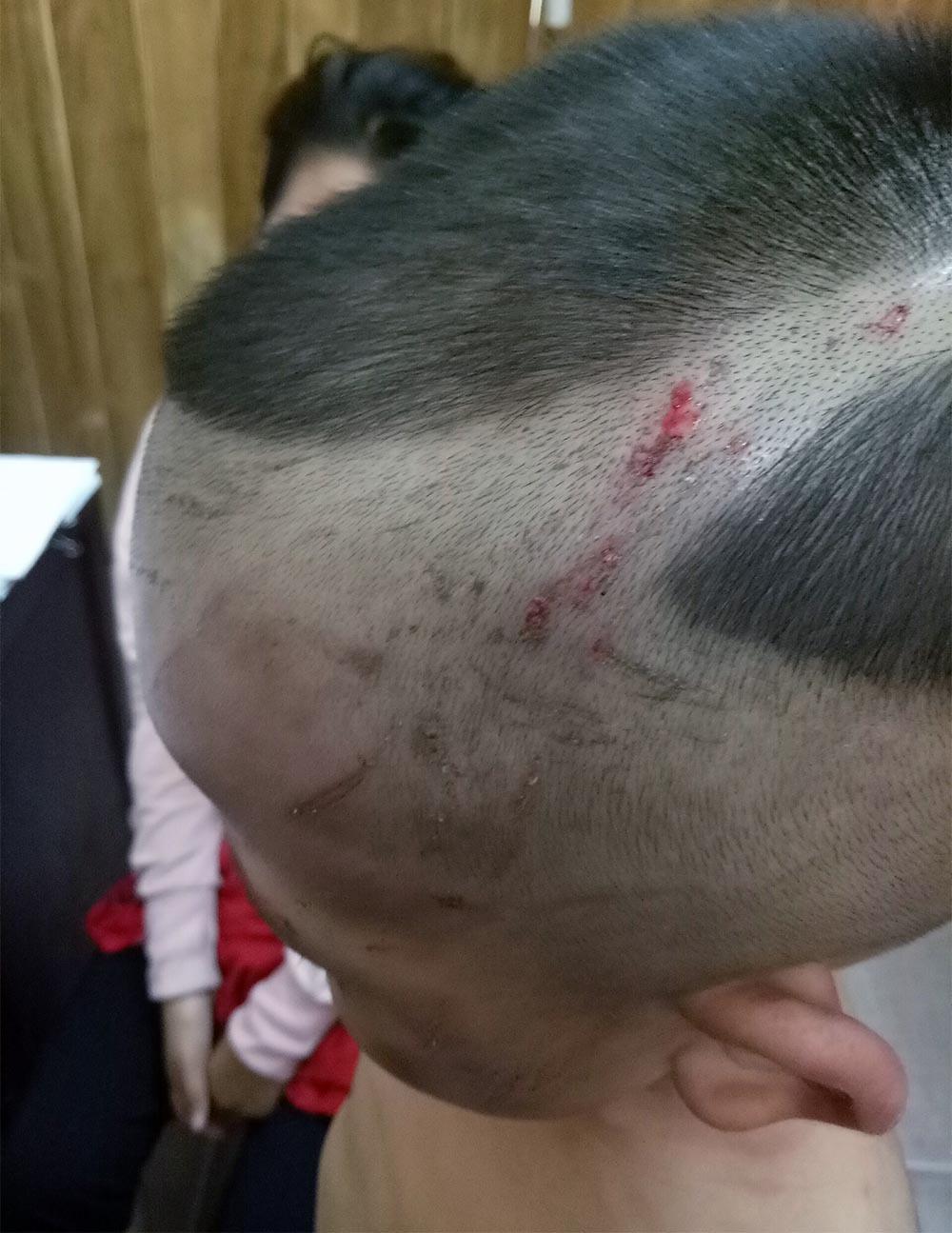 Bé trai 3 tuổi bị cha dượng đánh, chi chít vết thương trên người