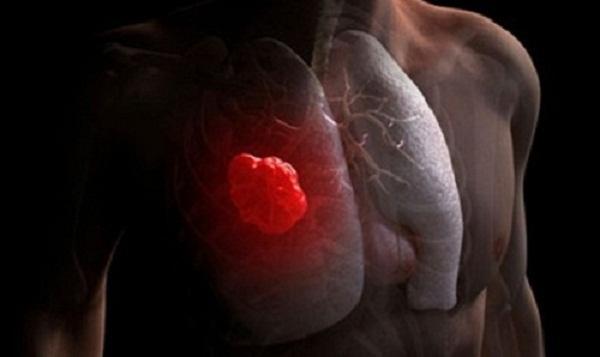 Ung thư phổi là loại ung thư phổ biến nhất trên thế giới, tỉ lệ tử vong lớn