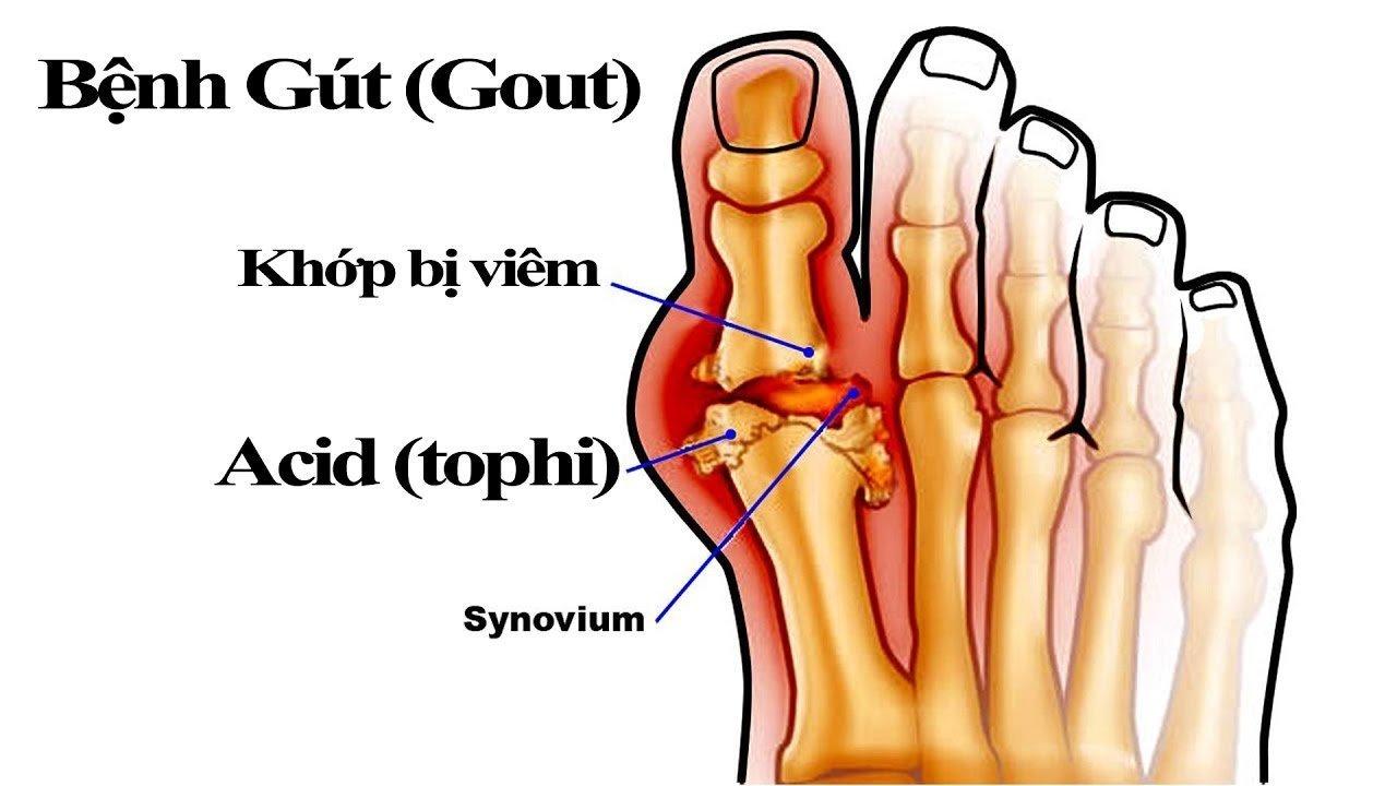 bệnh gout,tiền mãn kinh,tim mạch,gút