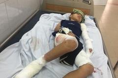 Bị bỏng điện nặng, bé trai nguy cơ hỏng cả chân lẫn tay