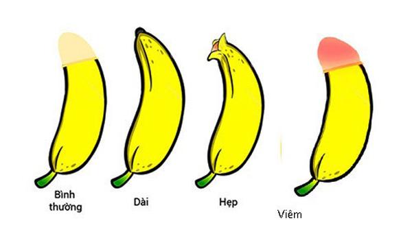 90% hẹp bao quy đầu dễ gây ung thư dương vật, con bạn có bị hẹp không?