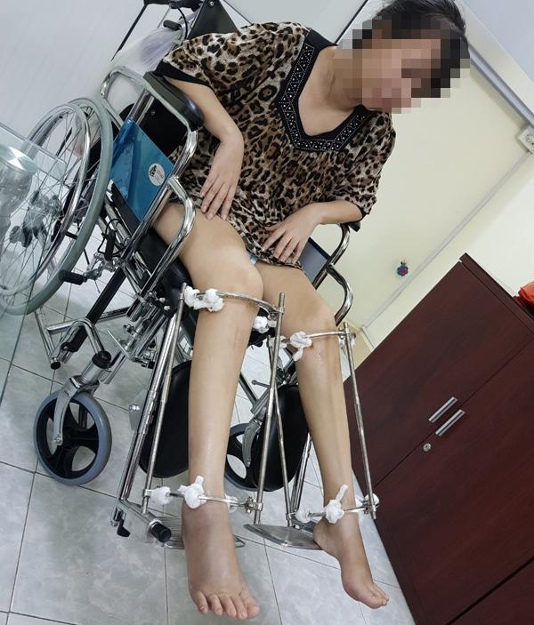 Bác sĩ kể ca kéo dài chân của cô gái Hà Nội cao 1,38m