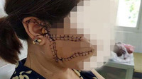Vết sẹo chằng chịt trên mặt người phụ nữ bị rạch bằng dao bổ cau