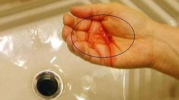 Bé trai ho ra máu vì mắc chứng bệnh hiếm gặp