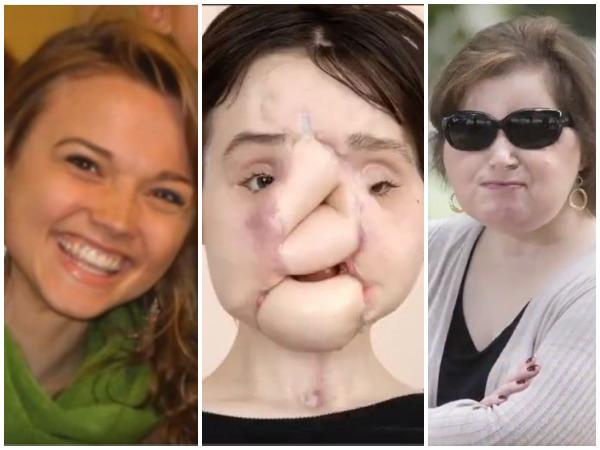Hành trình tìm lại khuôn mặt của Katie
