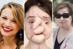 Tự sát không thành, cô gái 23 tuổi trở thành người ghép mặt trẻ nhất thế giới