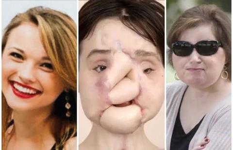 Tự sát không thành, cô gái 23 tuổi trở thành người cấy ghép mặt trẻ nhất trên thế giới