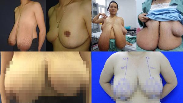 Ngực quá khổ 1,1m như hotgirl Hải Dương, người phụ nữ nhiều lần ngã sấp mặt