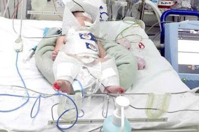 Sản phụ vỡ gan lúc chuyển dạ, bé sơ sinh thiếu oxy tổn thương não