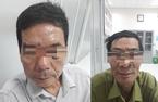 Đi đốt nốt ruồi, 2 người đàn ông bất ngờ phát hiện ung thư