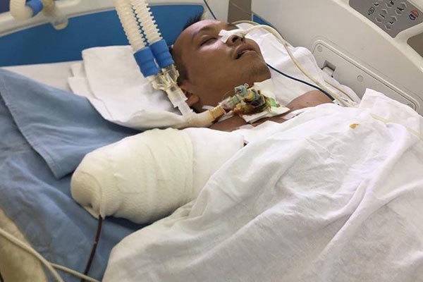 Cha thương binh què cụt nuốt nước mắt chăm con tai nạn giao thông