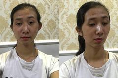 Bị bạn trai từ chối ngay lần gặp đầu cô gái quyết định 'đập' mặt làm lại