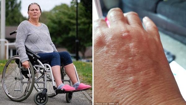 Căn bệnh kỳ lạ khiến người phụ nữ chỉ được tắm 2 lần/năm