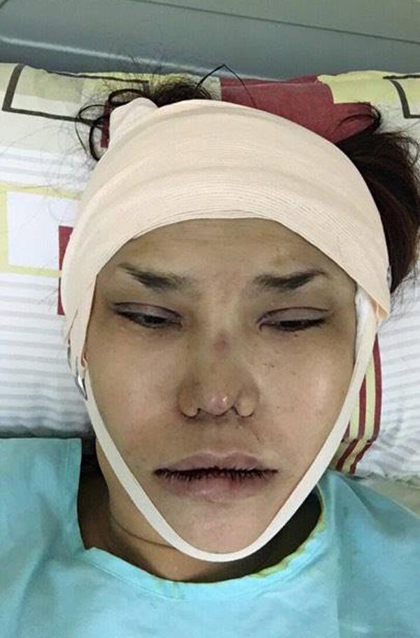 Giật mình hình ảnh phẫu thuật thẩm mỹ băng bó chằng chịt của sao Việt
