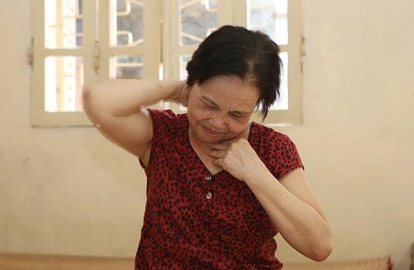 7 triệu chứng thoát vị đĩa đệm cột sống cổ