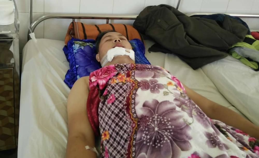 Công an viên bị thương nặng khi chặn bắt kẻ trộm xe máy