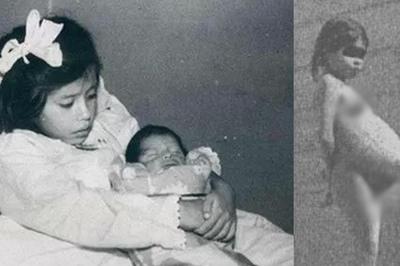 Bí ẩn về ca sinh nở kỳ lạ nhất thế giới, làm mẹ khi 5 tuổi