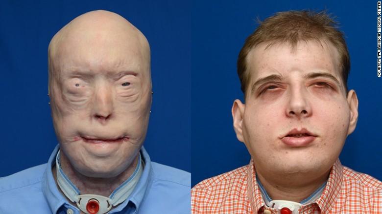 phẫu thuật ghép mặt