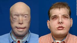 Bi kịch cuộc đời người lính cứu hỏa bị lửa thiêu, 71 lần ghép mặt