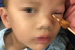 Chạy ra đón bố, bé trai bị que xiên thịt 10cm đâm vào hốc mắt